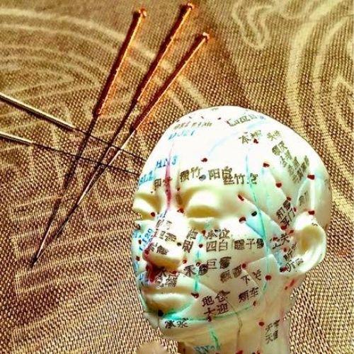Klassische Akupunktur